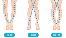 X脚、O脚矯正